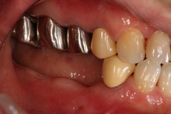 奥歯が抜けている場合のインプラント治療・術前