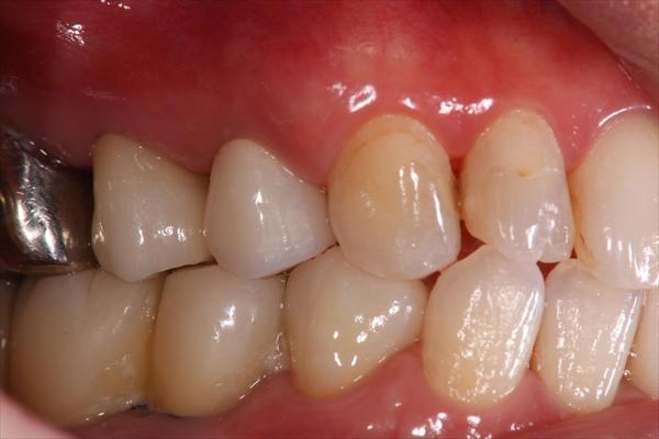 奥歯が抜けている場合のインプラント治療・術後