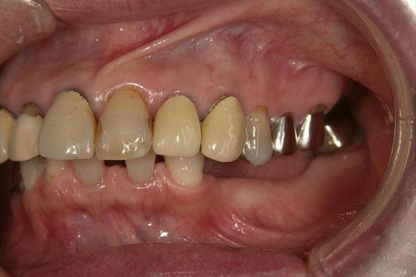 奥歯が抜けている場合のインプラント治療・術前1