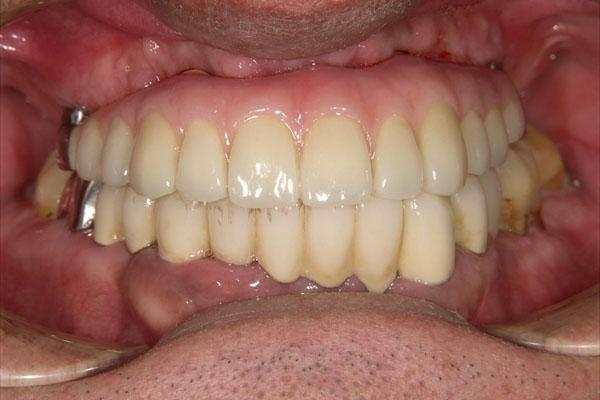 歯が全部抜けている場合のインプラント・術後