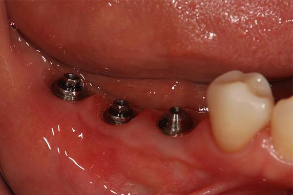 奥歯が向けている場合のインプラント治療 アパッドメント外したところの写真