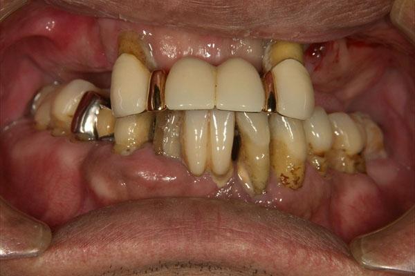 歯が全部抜けている場合のインプラント・術前
