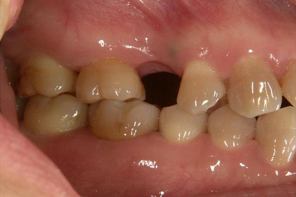 歯が1本抜けている場合のインプラント治療・術前