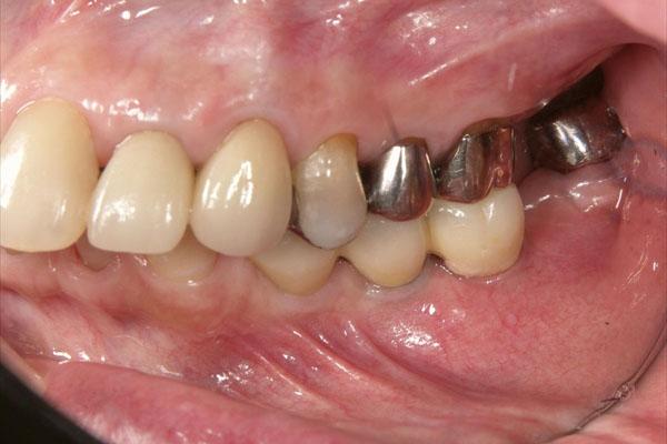 奥歯が抜けている場合のインプラント治療・術後1