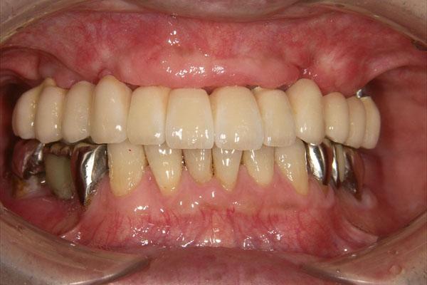 歯が全部抜けている場合のインプラント・術後1