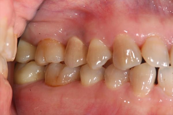 歯が1本抜けている場合のインプラント治療・術後