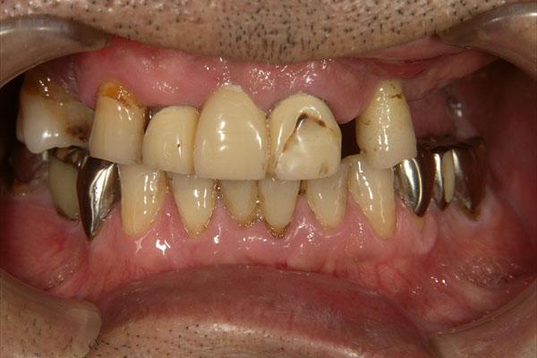 歯が全部抜けている場合のインプラント・術前1